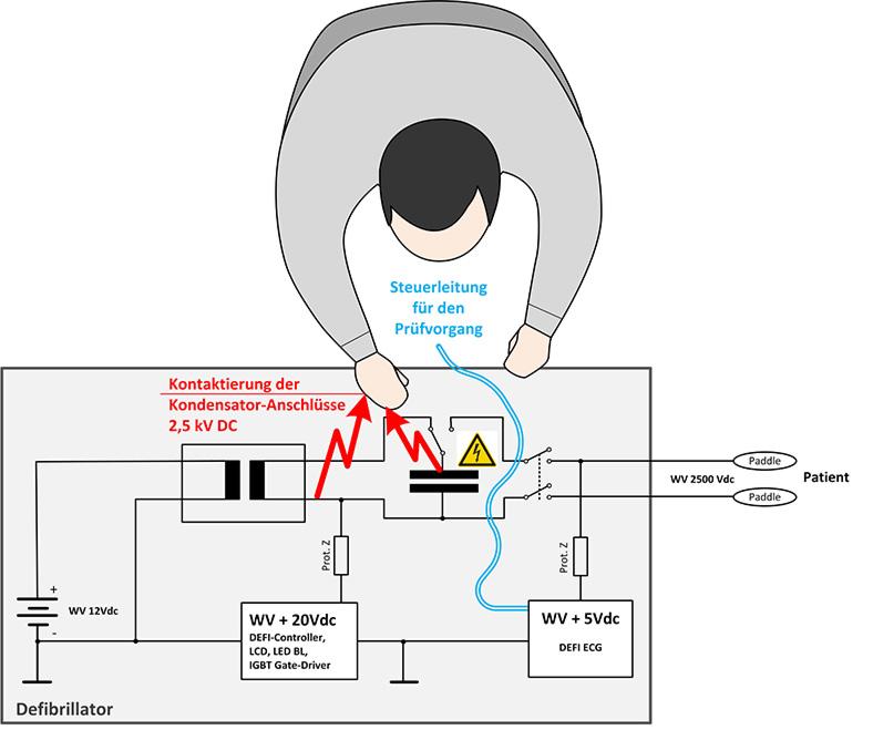 Das Schaltbild zeigt, wie es durch das ungeschützte Anfassen von Kondensator Anschlüssen zu einer ungewollten Entladung beim Prüfvorgang eines Defibrillators kommen kann.